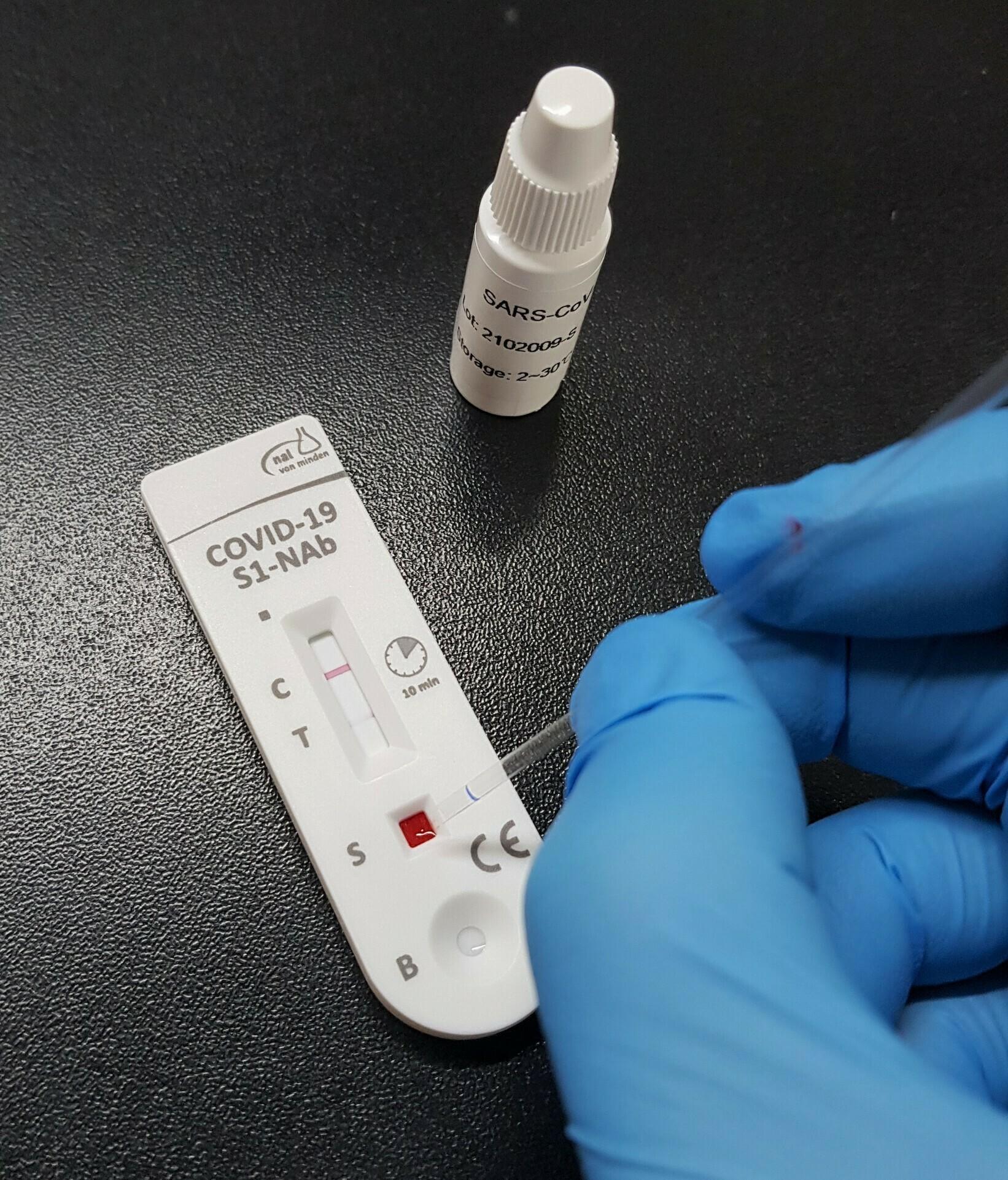 Expertos recomiendan comprobar anticuerpos antes de la dosis de refuerzo